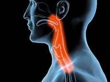 Difficulté à déglutir après une intubation ou une trachéotomie